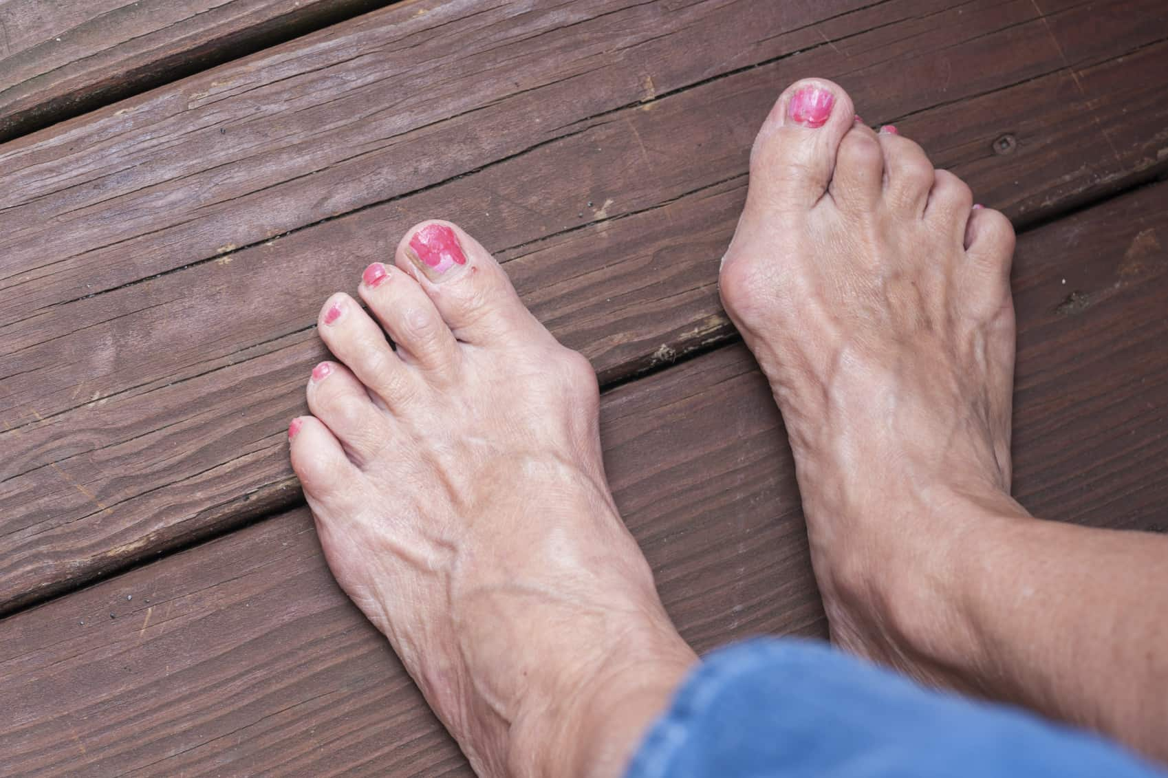 Pair of feet with severe bunions