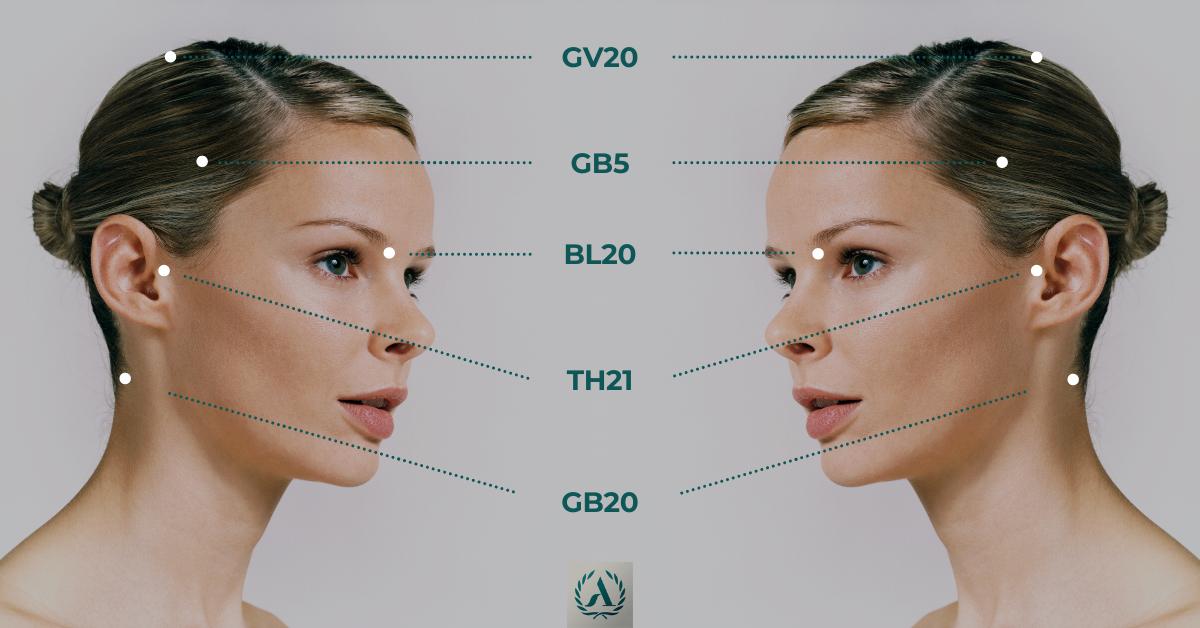botox mot huvudvärk