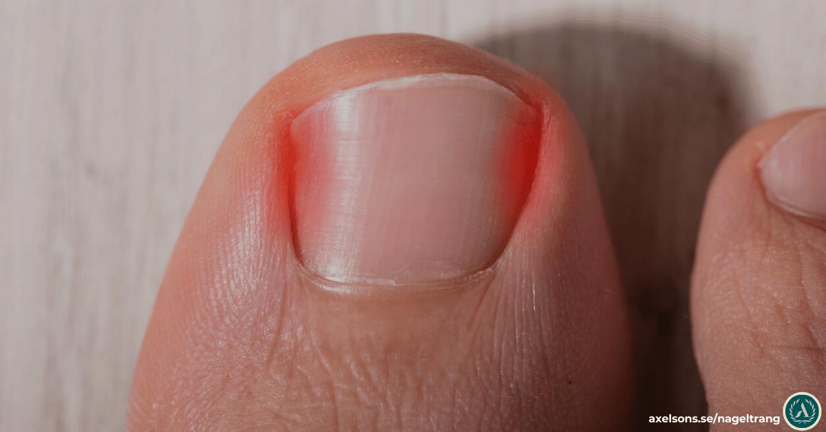 vad är nageltrång